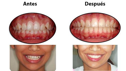 Esta es una paciente que corregimos su sonrisa sin necesidad de realizar extracciones, corregimos las malas posiciones dentarias y centrando su línea media. La paciente quedo muy feliz y después de su ortodoncia nos visita para sus controles de profilaxis.