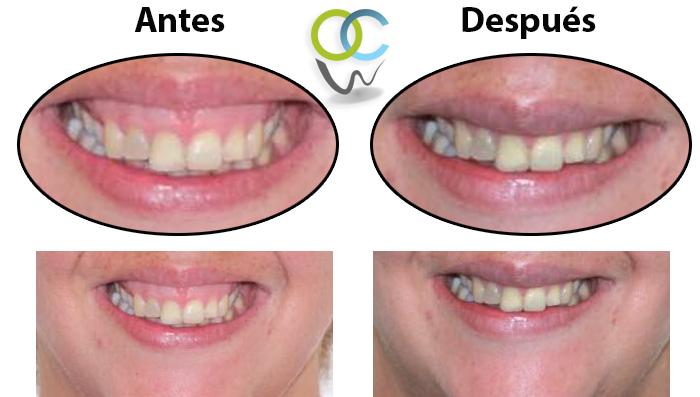 Paciente se le eliminó exceso de encia logrando que su sonrida luzca de una mejor manera.