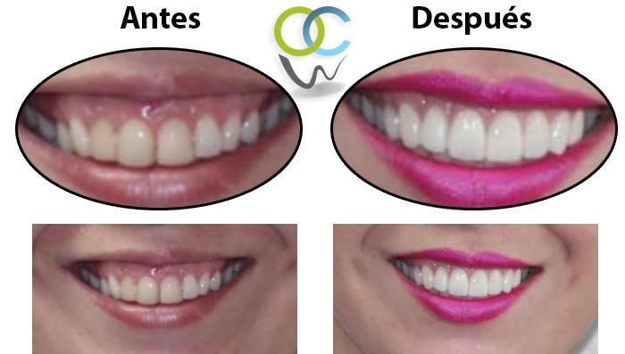 Paciente se le realizó carillas dentales en sus dientes frontales y reducción de encia, logrando así una hermosa y sexy sonrisa.