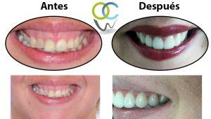 Corrección de sonrisa reduciendo encía y colocación de carillas e-max en dientes frontales.