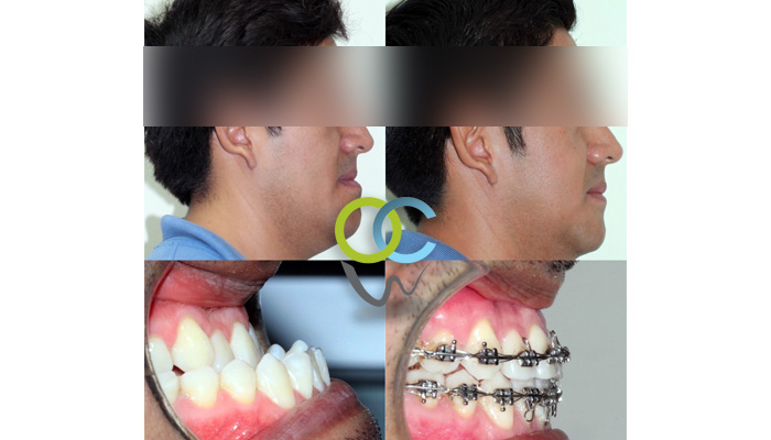 Paciente Ortoquirurgico, presentaba exceso mandibular, al cual se le realizo primero ortodoncia y después cirugia. Los resultados obtenidos son muy buenos en función y estética para el paciente.