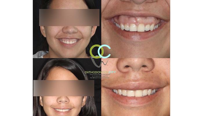 """Tecnica Quirúrgica """"Reposición Labial"""" . Quieres mejorar tu sonrisa? Te ofrecemos técnicas poco invasivas para la corrección de dichas alteraciones, con resultados altamente estéticos y satisfactorios para nuestros pacientes."""
