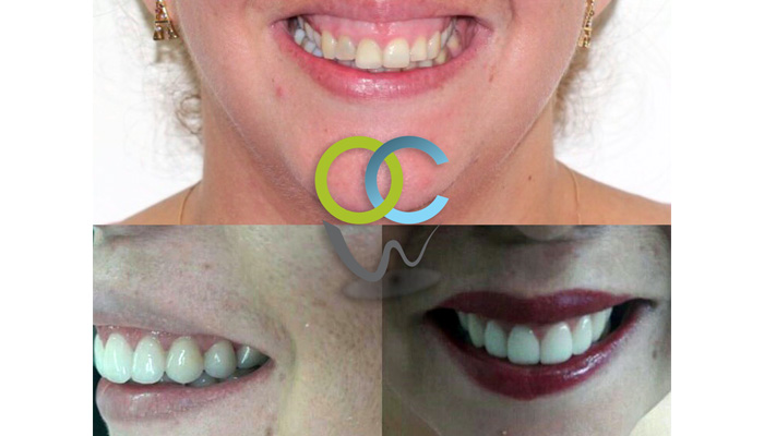 Paciente se realiza procedimiento quirúrgico de reposición labial como alternativa para la resolución de una muy marcada sonrisa gingival. También se realizo protocolo de diseño de sonrisa el cual incluyo  gingivectomia  (cortes de encías) y colocación carillas dentales emax altamente estéticas.